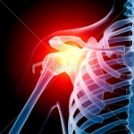 13304765-13304765-shoulder-in-pain-x-ray